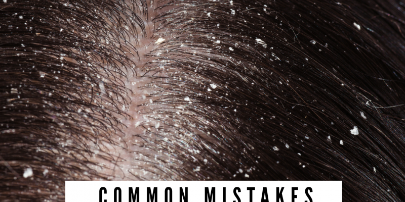 Common Mistakes That Can Lead To Dandruff