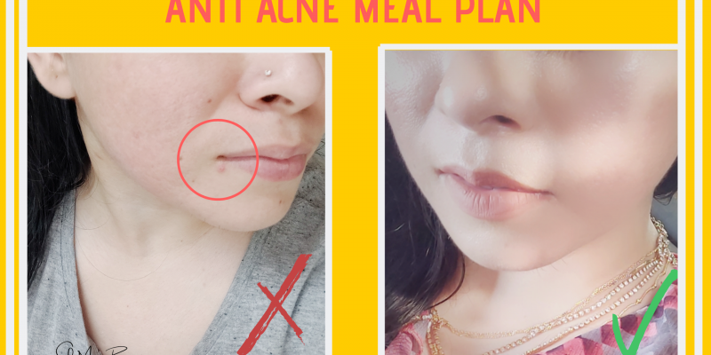 Meal Plan for acne prone skin